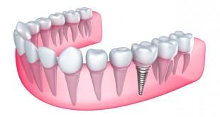 Passos para a Colocação de Implantes Dentários