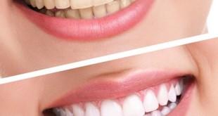 Dentes mais Brancos? Branqueamento